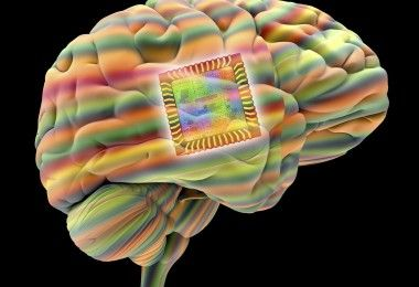 1453208956_11-brain-implant-corbis
